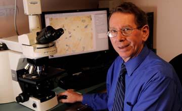 McArdle disease - Ronald Haller, M.D.